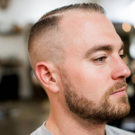 Haircuts For An Early Stage Receding Hairline – FITTED Short Haircut For Receding Hairline